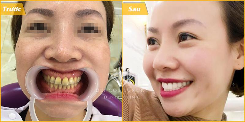 Bọc răng sứ điều trị tuỷ