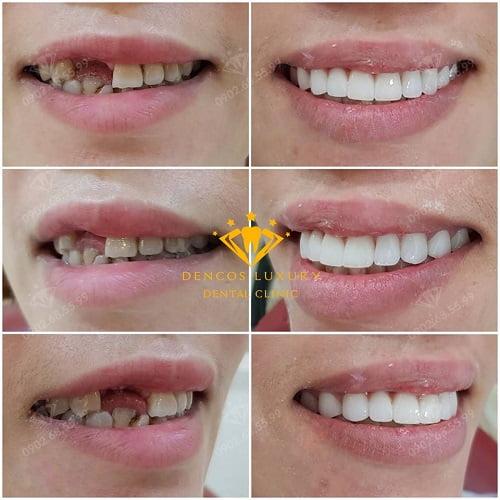 Review làm cầu răng sứ