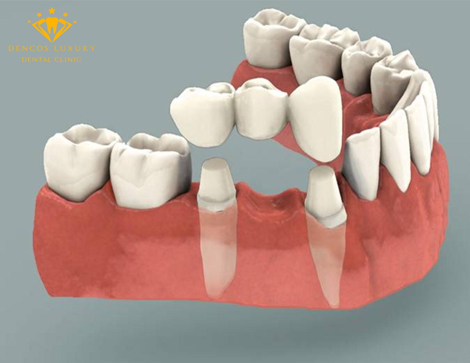 Review làm cầu răng sứ tại Dencos Luxury
