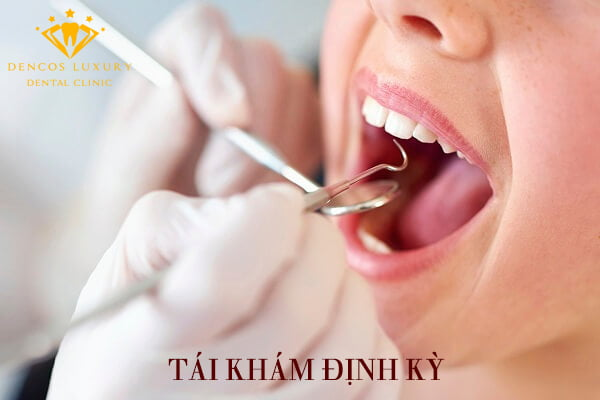 Cách chăm sóc cầu răng sứ