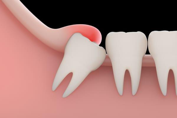 Mọc răng khôn hàm trên có đau không