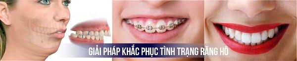 răng hô mất tự tin