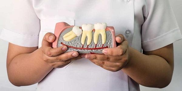 mọc 2 cái răng khôn
