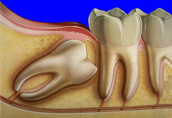 răng khôn mọc lệch 45 độ