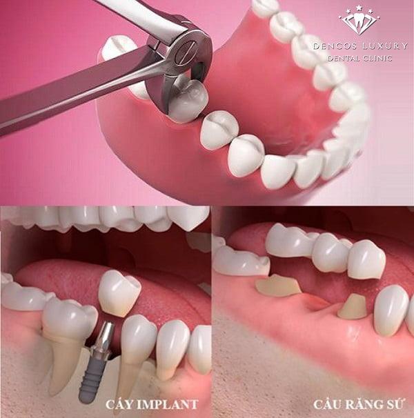 răng sâu ăn vào lợi
