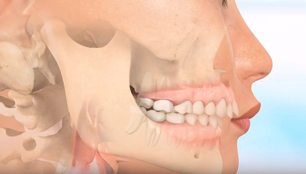 răng hô là bệnh gì