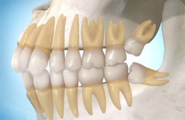 Răng khôn số 8 mọc lệch