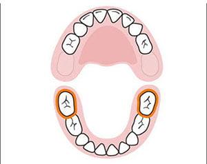 Bé mọc răng không đúng thứ tự
