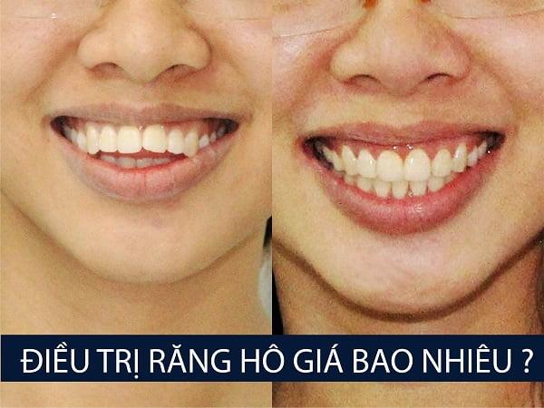 trị răng hô giá bao nhiêu