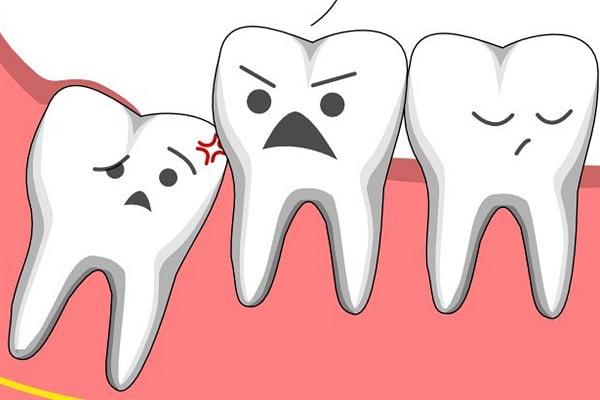 Mọc răng khôn có nhất thiết phải nhổ không