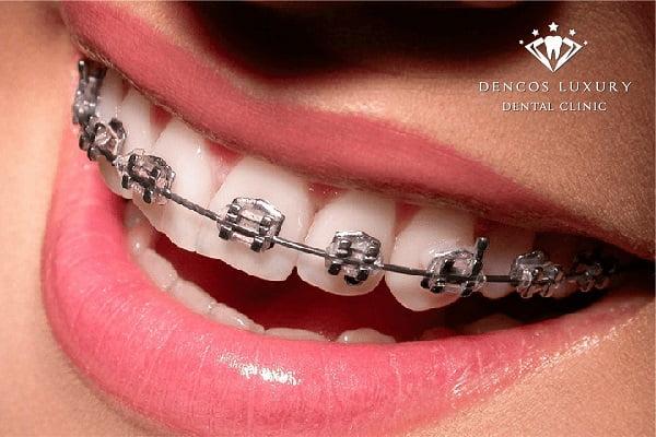 Niềng răng hô 1 hàm giá bao nhiêu