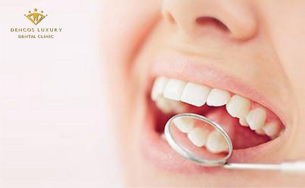 Viêm nha chu răng khôn