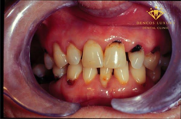 bệnh lý sâu răng