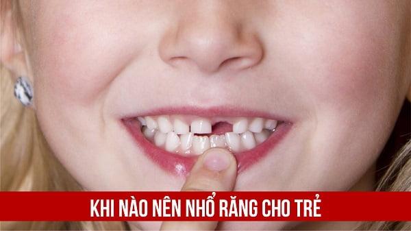 nhổ răng cho trẻ 3 tuổi