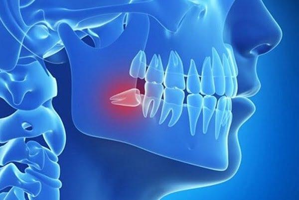 lưu ý nhổ răng khôn