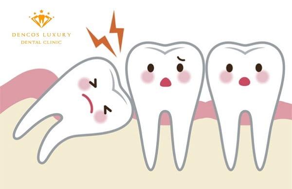 mọc 3 răng khôn