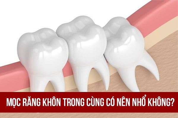 Mọc răng khôn trong cùng