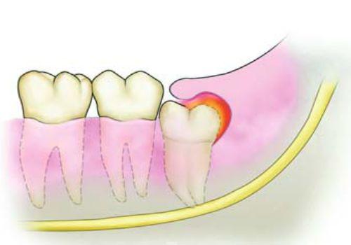 Mọc răng khôn và sưng lợi