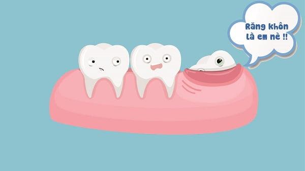 mọc răng khôn bên phải