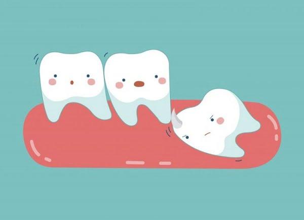 Mọc răng khôn rất đau gây ra biến chứng gì?