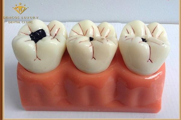 nguyên nhân gây sâu răng