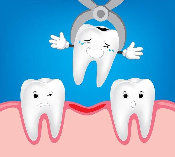 trẻ 4 tuổi sâu răng nhiều