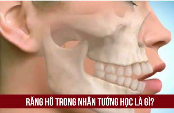 răng hô trong nhân tướng học