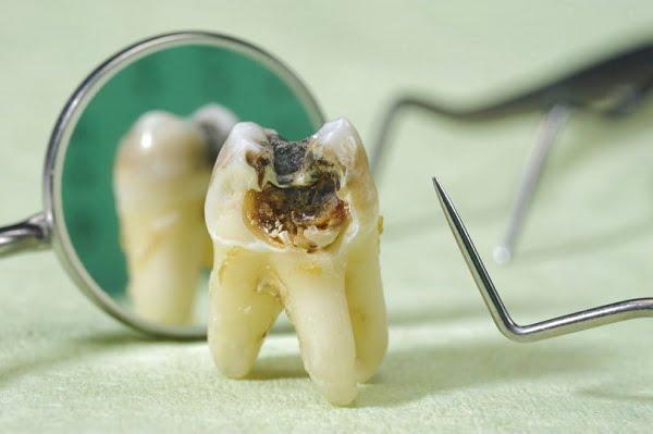 sâu răng mặt ngoài