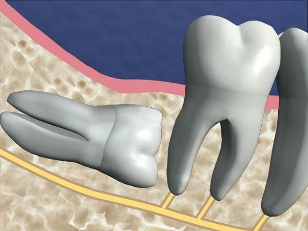 biến chứng mọc răng khôn