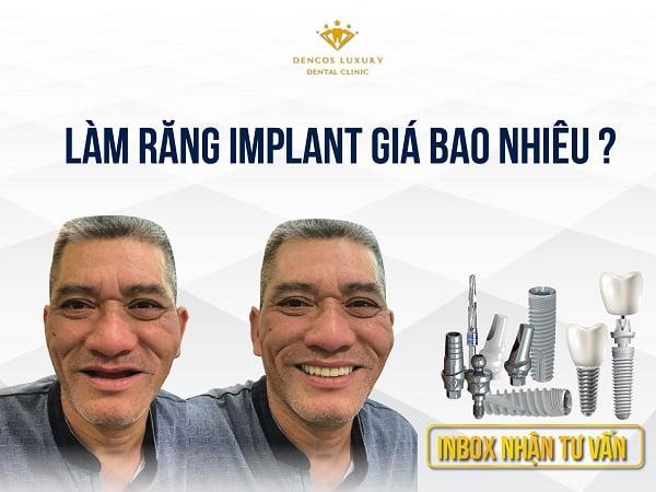 Giá làm răng implant