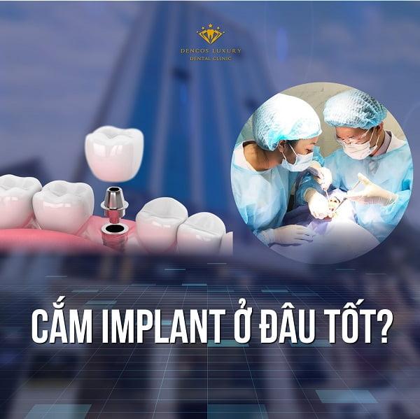cắm implant ở đâu tốt