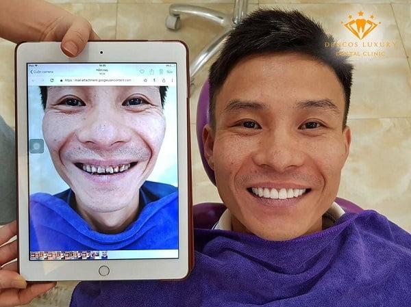 kết quả bọc răng sứ