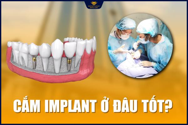 Cắm implant ở đâu tốt?